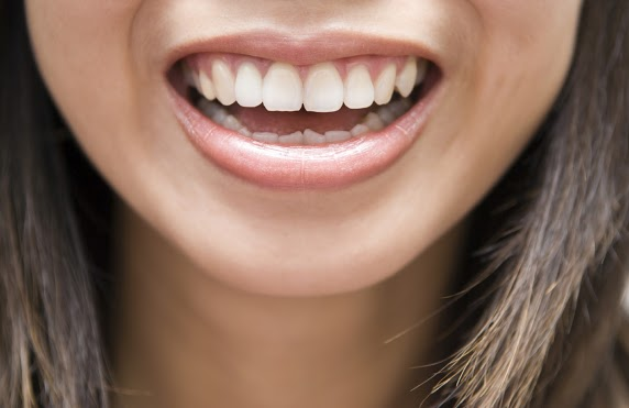 Benefits of Straight Teeth