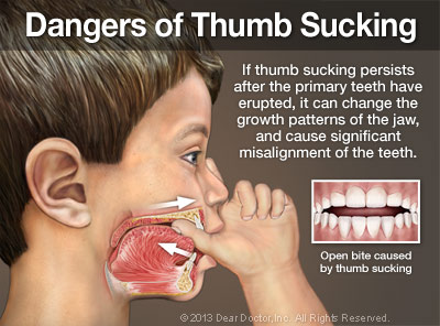 Child With Thumb In Mouth, Inside Of Cheek With Arrows Pointing Right and Left. Text Reads - Dangers Of Thumb Sucking - If Thumb Sucking Persists After The Primary Teeth Have Erupted, It Can Change The Growth Patterns Of The Jaw, And Cause Significant Misalignment of The Teeth